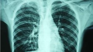 PD1抗体使用的副作用处理——肺炎