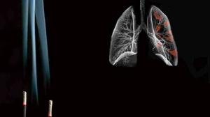 ASCO2016前瞻丨PD-1抑制剂治疗肺癌最新进展(下)