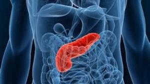 胰腺癌新药PEGPH20:生存时间延长77%