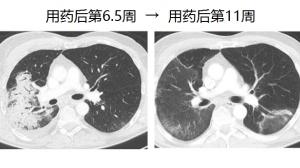 有惊无险:三次PD-1抗体,肿瘤消失14个月!