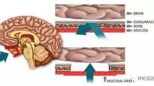 精准靶向脑转移新药(1):AZD3759