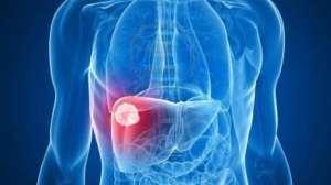 有效率提高近3倍,肝癌患者迎来重磅新药