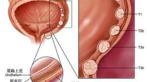 ASCO快讯:泌尿系肿瘤新药新进展