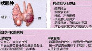 甲状腺结节:吓死了?怎么办?
