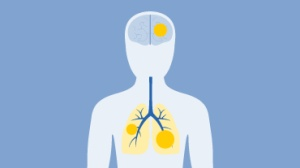 【HapOnco-指南】2017.V7非小细胞肺癌NCCN指南火速更新,艾乐替尼一线地位确立!