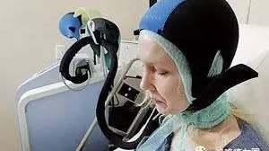打化疗,不会再脱发:神器上市!