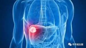 生命不息,肝癌新药汇总:必读