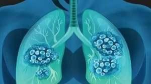 化疗、靶向、PD1:晚期肺癌到底怎么选