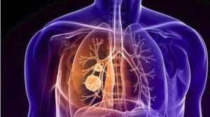 小细胞肺癌到底能不能用PD1:权威数据