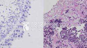 变形记:耐药以后变成了小细胞,怎么破!
