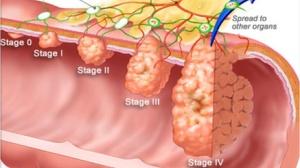 介绍一个多才多艺的靶向药:Ramucirumab