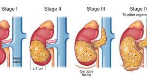 1/3临床治愈:又一项PD1长期随访数据发布