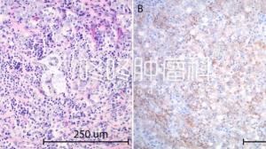 PD-L1基因突变:PD1让肿瘤完全消失
