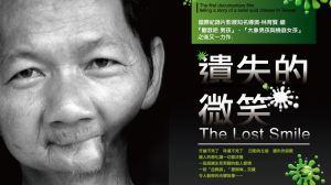 槟榔之殇:那些毁去面容的手术,无声描绘着通往口腔癌的黑色暗河