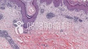 PD-1治疗一波三折:免疫性肠炎,胆囊炎,甚至罕见皮肤副作用!