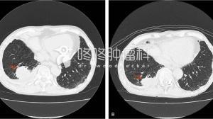 双原发肿瘤:PD-L1强阳和PD-L1阴性,用PD-1效果如何?