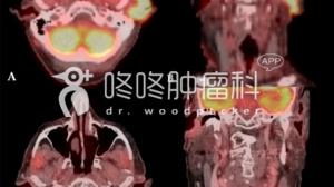"""拒绝手术,PD-1联合西妥昔单抗成功""""治愈""""肿瘤"""