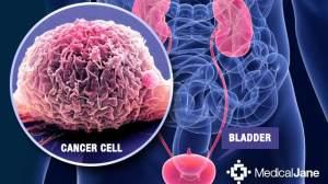 十年磨一剑!膀胱癌迎来免疫时代,临床开启,免费用药!