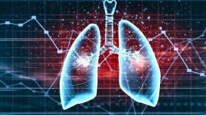 肺癌大咖·张宇:疫情期间患者如何防护?免疫不良反应有何征兆?九个问题权威解答肺癌治疗
