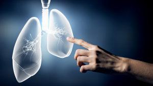 注意:这些人是肺癌高危人群