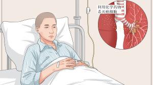 盘点:肺癌患者常用的化疗药物
