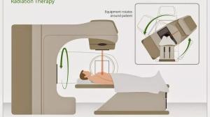 肺癌患者能进行放疗吗?