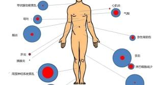 免疫治疗药物的常见副作用及处理办法
