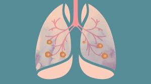 肺癌晚期就没救了,真的吗?