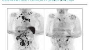 不可思议:得了新冠肺炎,肿瘤却消失了?